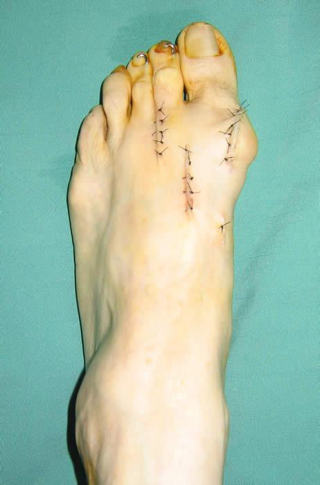 外反母趾(がいはんぼし)の症状と治療、手術療法、横浜の吉野整形外科