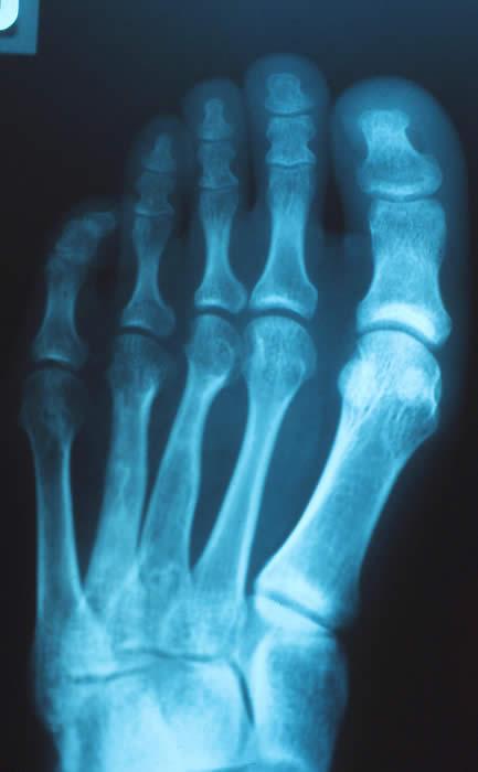 中足骨短縮症(第4趾短縮症)について ― 仮骨延長法を中心に ―  &